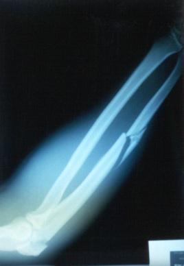 xray fracture arm